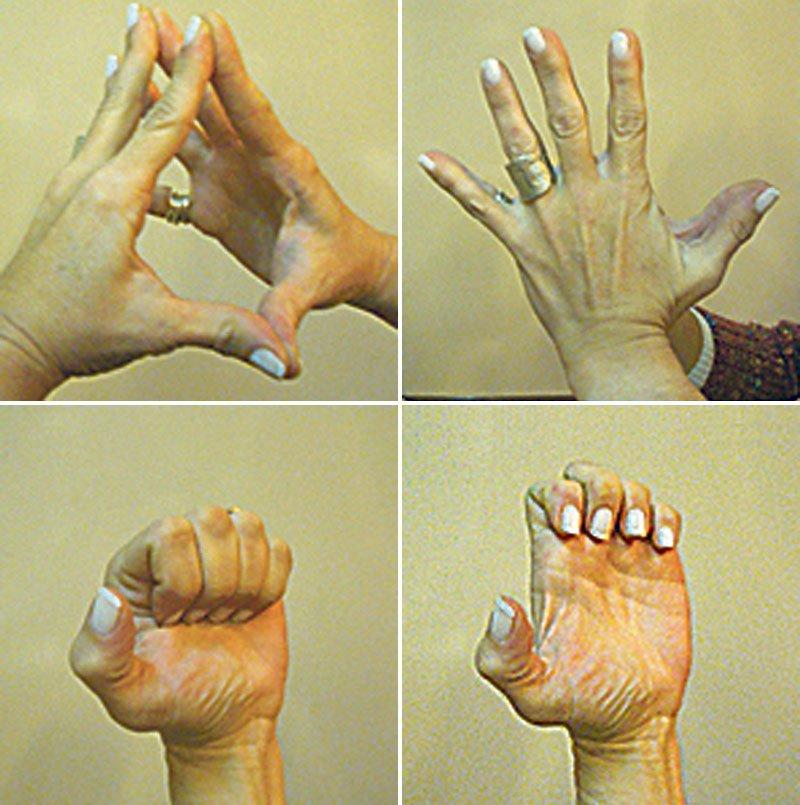 anuncios de sexoservidoras dedos de los pies
